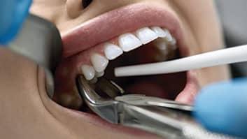 Clínica odontológica indenizará paciente por extração de dentes de forma imprudente.